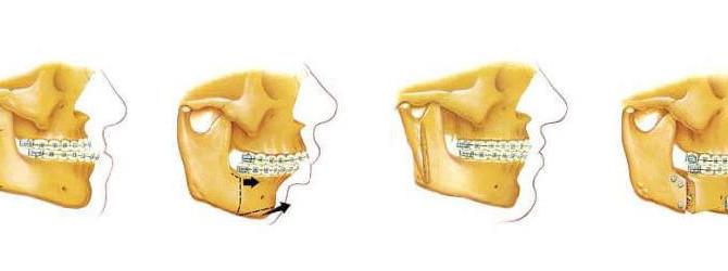 850x250-Oral-and-Maxillofacial-Surgery