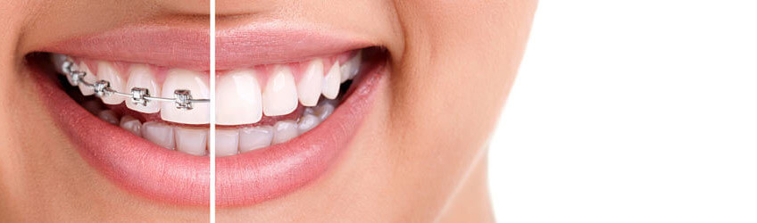 850x250-Orthodontics
